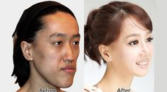Korean Plastic Surgery – Before and After 14.There is hope for everyone just do not give up <3