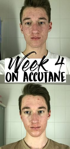 Click here to read about what it's REALLY like being on the Accutane Acne Treatment!