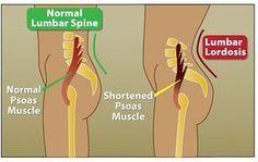 De psoas is een van de grootstespieren inje lichaam. Hij loopt van je onderste rugwervels (T12) naar de binnenkant van je dijbeen, aan de voorkant van je wervels en achter je organen. De psoas is samen met de iliacusverantwoordelijk voor de beweging van je heupen en bovenbenen. Deze spiercombinatie heet de iliopsoas. De psoas beïnvloedt…