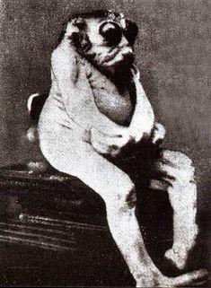 L'anencéphale de Vichy - L'histoire est relatée par P. Duvic en 1973 dans un livre intitulé Monstres et monstruosités