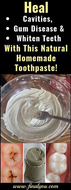Cure tooth decay with remineralizing toothpaste recipe