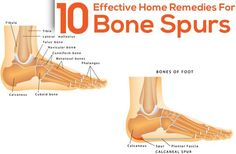 10 Effective Home Remedies For Bone Spurs