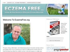 """Eczema Free - A Step-By-Step System To Eliminate Eczema Naturally - http://positivelifemagazine.com/eczema-free-a-step-by-step-system-to-eliminate-eczema-naturally/ http://pagepeeker.com/t/l/eczemafree.org%2febook%2f   Eczema Free – A Step-By-Step System To Eliminate Eczema Naturally    http://eczemafree.org/ebook/ review    source Please follow and like us:  var addthis_config =   url: """""""",  title: """""""""""