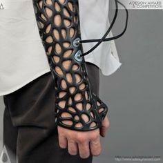 El estudiante turco Deniz Karasahin ha creado, gracias a la impresión 3D, un exoesqueleto que incorpora tecnología de ultrasonido para agilizar la curación de huesos rotos.