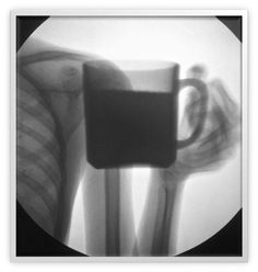 Cheers Radiologists love a brew.