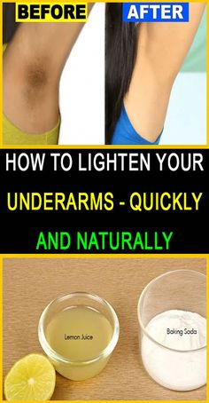 How To Lighten Your Underarms Quickly And Naturally #darkunderarms #lightenyourunderarms#DarkSpotsUnderArmpitsHow to Lighten Dark Underarms Fast with 2 Natural Ingredients | DIY Health Tips #DarkArmpits Healthy Facts, Healthy Life, Lightening Underarms, How To Whiten Underarms, Dark Armpits, Lighten Skin, Simple Life Hacks, Natural Cleaning Products, Wellness Tips
