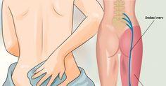 Sciatica Pain Relief, Sciatic Pain, Migraine Relief, Sciatic Nerve, Treating Sciatica, Anti Inflammatory Herbs, Trigger Point Therapy, Severe Headache, Sciatica