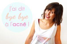 Je me suis débarrassée d'une acné sévère de manière naturelle et je vous dis comment ! Retrouvez toutes mes astuces pour dire bye bye à l'acné en un an !