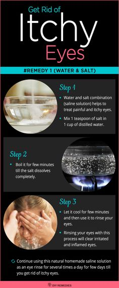 Water and Salt Remedies for Itchy Eyes
