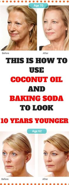 This Is How To Use Coconut Oil And Baking Soda To Look 10 Years Younger -weightlossserve Natural Face Cleanser, Baking With Coconut Oil, Nutrition, Tips Belleza, Skin Care Tips, Ibiza, Health And Beauty, Natural Remedies, Health Tips