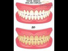 Средство ухода за полостью рта DENOVA Oral BIO Complex