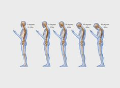 Thanks to the earth's gravitational pull, the average adult can put up to 60 pounds of pressure on the cervical spine when bent at a 60-degree angle.