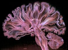 This is the most advanced artistic visualisation of the brain in the world. Prepare to be in awe of yourself.