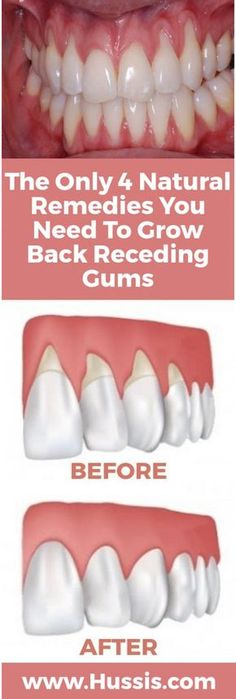 There are a lot of reasons why gums recede and it can become quite a health problem if this happens. If you are experiencing receding gums then you have found a great article to read. Go to the Next Page find 4 of the best home natural remedies to help gr