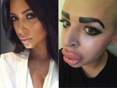 This dude spent 150K to look like...Kim K.
