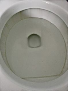 remove lime scale buildup in toilet