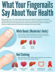 What Your Nails Say About Your Health!!!!#Health&Fitness#Trusper#Tip