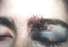 her night terrors were often a violent danger to herself when oliver couldn't stop them soon enough. she once threw herself head first into her bedpost and was blinded in her left eye for several days.