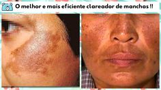O melhor clareador de manchas de pele. O resultado é incrível !!!