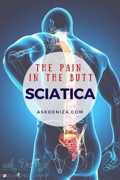 Back sciatica treatment best pain relief for sciatic nerve pain,best way to help sciatica pain foods good for sciatica,how to heal a sciatic nerve problem inflamed sciatic nerve relief. Sciatica Symptoms, Sciatica Pain Relief, Sciatica Exercises, Sciatic Pain, Sciatic Nerve, Nerve Pain, Back Pain Relief, Sciatica Massage, Massage