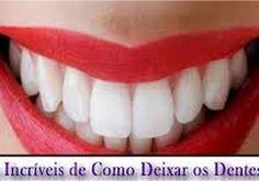 7fd6fe011 10 Dicas para deixar os seus dentes mais brancos - Só dica feminina  Feminina