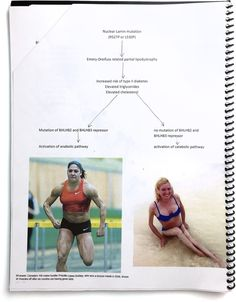 How a woman whose muscles disappeared discovered she shared a disease with a muscle-bound Olympic medalist.