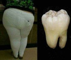 Funny pictures about Someone needs to go to a dentist. Oh, and cool pics about Someone needs to go to a dentist. Also, Someone needs to go to a dentist. Funny Quotes, Funny Memes, Jokes, Hilarious Stuff, Fun Funny, Super Funny, Dental Humor, Dental Hygiene, Frases