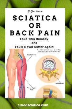 back pains discomfort, Signs & Signs and also just how to overcome normally and properly Treating Sciatica, Sciatica Stretches, Sciatica Symptoms, Sciatica Pain Relief, Sciatic Pain, Sciatica Pain Treatment, Pain Scale, Neck And Back Pain