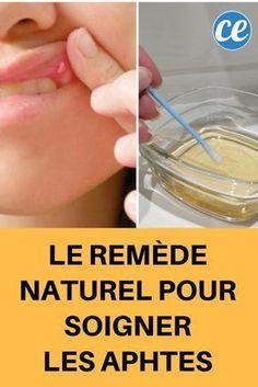 Contre les Aphtes, Plus Besoin d'Acheter d'Hextril ! Utilisez Ce Remède 100% Naturel à la Place.