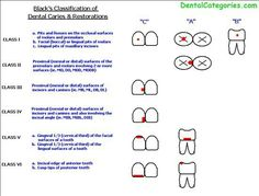 Definition G. Black Classification of Dental Caries. Greene Vardiman Black commonly known as G. Black, is known as the father of modern dentistry in the US. Medical Assistant Skills, Dental Assistant Study, Dental Hygiene School, Dental Humor, Dental Hygienist, Dental World, Dental Life, Dental Teeth, Dental Anatomy