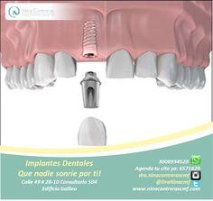 Múltiples casos de implantes dentales. Devolviendo sonrisas, alegrías, calidad de vida y sin miedo a tener una vida normal.  Excelentes planes y descuentos. Agenda tu cita ya: 6571629 - WhatsApp: 3008934528 http://ninacontrerascmf.com/location/