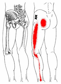 Do you know what's causing your sit bone pain? 2017 Update David Keil revisits the issue of sit bone pain in this yoga anatomy article and discusses which trigger points and muscles could be contributing to the pain. It's not always about the hamstrings! Calf Pain, Leg Pain, Acupuncture, Hamstring Yoga, Hamstring Muscles, Fitness Workouts, Referred Pain, Trigger Point Therapy, Yoga Anatomy