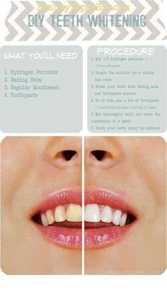 Beauty How-To's: Whitening your Teeth w/ hydrogen peroxide, baking soda, mouthwash, and toothpaste Beauty Makeup, Hair Beauty, Beauty Care, Beauty Skin, Makeup Style, Beauty Vanity, Women's Beauty, Face Makeup, Diy Beauté