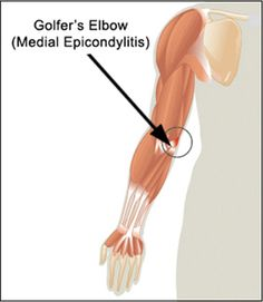Golfers elbow, or medial epicondylitis, is similar to its counterpart, tennis-elbow. The primary differences between these conditions are the location of the pain and the activity that leads to injury.