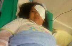 Mulher pode ficar cega após ter sido atingida por bomba de gás na Banda do Galo de Manaus