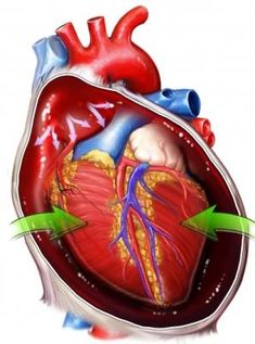 """rightatrium: """" Cardiac tamponade occurs when fluid [blood] builds up in the pericardial sac (the sac that surrounds the heart.) This fluid compresses the heart. Enough blood cannot be pumped in and out of the heart - this decreases the cardiac. Nursing Tips, Nursing Notes, Cardiac Nursing, Nursing Mnemonics, Nursing Information, Heart Sounds, Respiratory Therapy, Nclex, Nurse Practitioner"""
