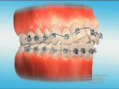 Orthosmile Orthodontics - What To Expect With Braces