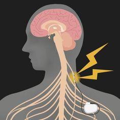 [WEB] Vagus Nerve Stimulation Improves Arm Function After Stroke Gut Feeling, How Are You Feeling, Nerf Vague, Visual Snow, Vagus Nerve, Cranial Nerves, Neuroplasticity, Brain Injury