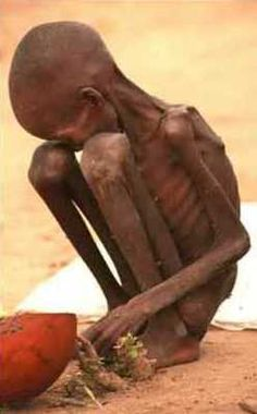 **It's hard to believe that a human being can look like this and still be alive. The atrocities of our world, so sad.