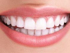 Schnell gemacht: Dieses Hausmittel macht eure Zähne weißer