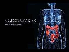 50% Of ALL Colon CANCER Cases Could BE Prevented If Everybody Did These 9 Things. Colon Cancer CURES https://homeremediestv.wordpress.com/2017/07/31/50-of-all-colon-cancer-cases-could-be-prevented-if-everybody-did-these-9-things-colon-cancer-cures/ #HealthCare #HomeRemedies #HealthTips #Remedies #NatureCures #Health #NaturalRemedies  #HealthCare #HomeRemedies #HealthTips #Remedies #NatureCures #Health #NaturalRemedies  http://HomeRemediesTV.com/Best-Supplements 50% Of ALL Colon CANCER Cases…