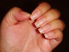 La Onicofagia es unproblema que se deriva del estrés y el nerviosismo. Morderse las uñas es un problema de salud que además hace que nuestras manos no luzcan estéticas. Si eres de las personas que no puede dejar de morderlas, hoy se acabarán tus problemas y es que te diremos cómo hacer un esmalte para …