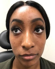 Before photo of 26 year old female treated with Voluma for cheek enhancement Cheek Contouring, Facial Fillers, Face Facial, Body Sculpting, Cosmetics, Female