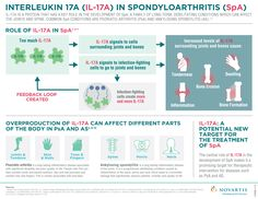 What is the role of #IL17A in spondyloarthritis (SpA)?