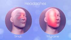 14 Effective Home Remedies to Relieve Sinus Pressure in Head Sinus Migraine, Headache Cure, Pressure Point Therapy, Pressure Points, Relieve Sinus Pressure, Nasal Passages, Sinus Infection, Cavities, Home Remedies