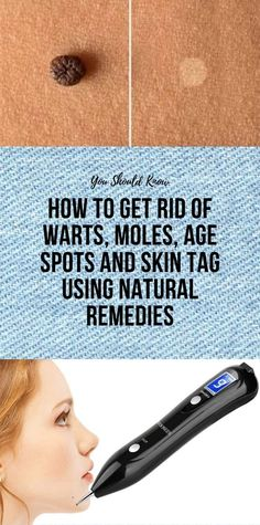 How To Get Rid Of Warts, Moles, Age Spots And Skin Tag Using Natural Remedies – Blackhead Good Health Tips, Health And Fitness Articles, Get Rid Of Warts, Remove Warts, Warts On Face, Exercise To Reduce Thighs, Clear Skin Tips, Skin Tag Removal, Healthy Mind And Body