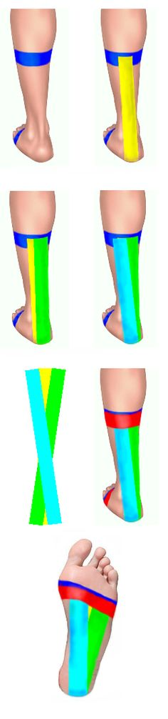Achilles Taping--for Chris