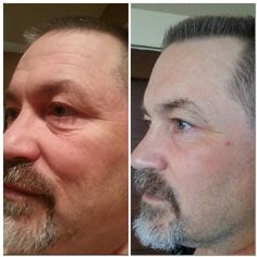 Rodan+Fields is not just for girls. Check out this awesome before and after picture, he was introduced to REDEFINE. The results are there. And so is the guarantee. Message me now for more info. kirasicpark.myrandf.com
