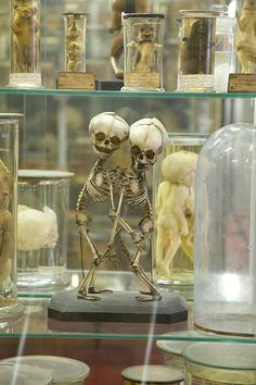 Musee Dupuytren, Paris. a museum of anatomical items illustrating diseases and malformations. It is located at 15, rue de l'Ecole de Médecine, Les Cordeliers, Paris, France, and open weekdays except holidays