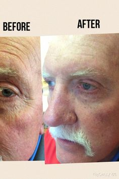 Stem cell technology helping you look 10 years younger instantly